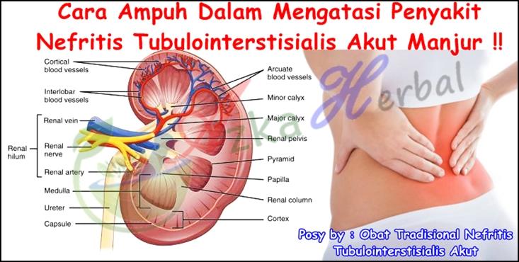 Obat Tradisional Nefritis Tubulointerstisialis Akut