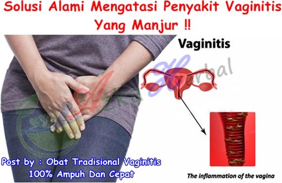 Obat Tradisional Vaginitis 100% Ampuh Dan Cepat